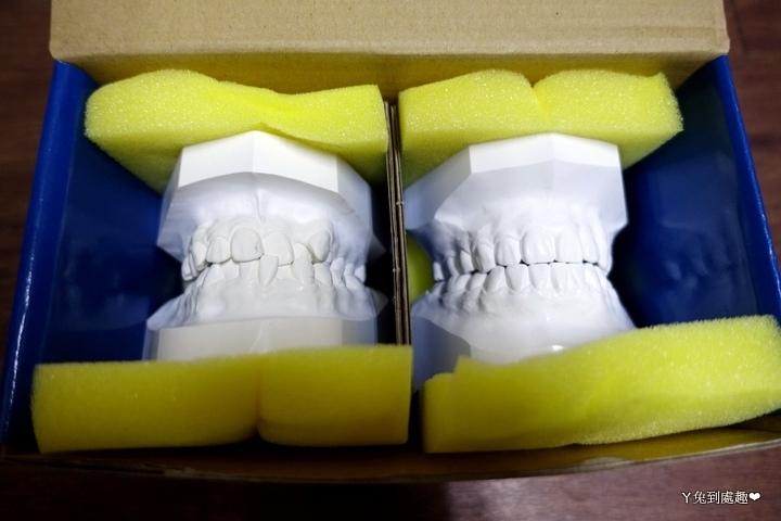 牙齒模型2