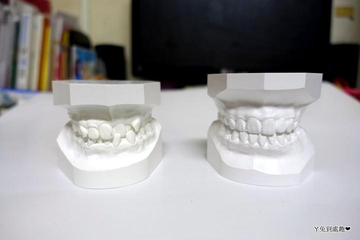 牙齒模型 矯正前後