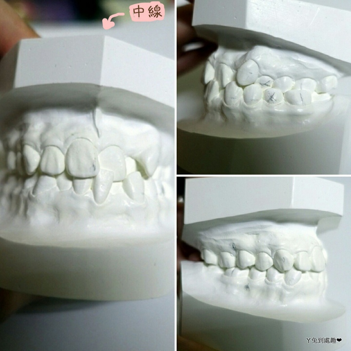 矯正前牙齒.jpg