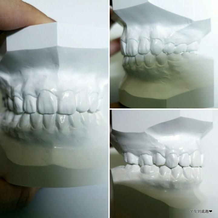 矯正後牙齒.jpg